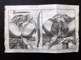 Diderot 1780's Antique Medical Print. Chirurgie 13